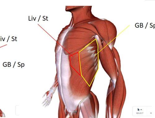 טיפול בכאבים בצלעות עם דיקור בגישה מרידיאנית – שבר בצלעות, סדק בצלעות, שריר בין צלעי תפוס / מכווץ