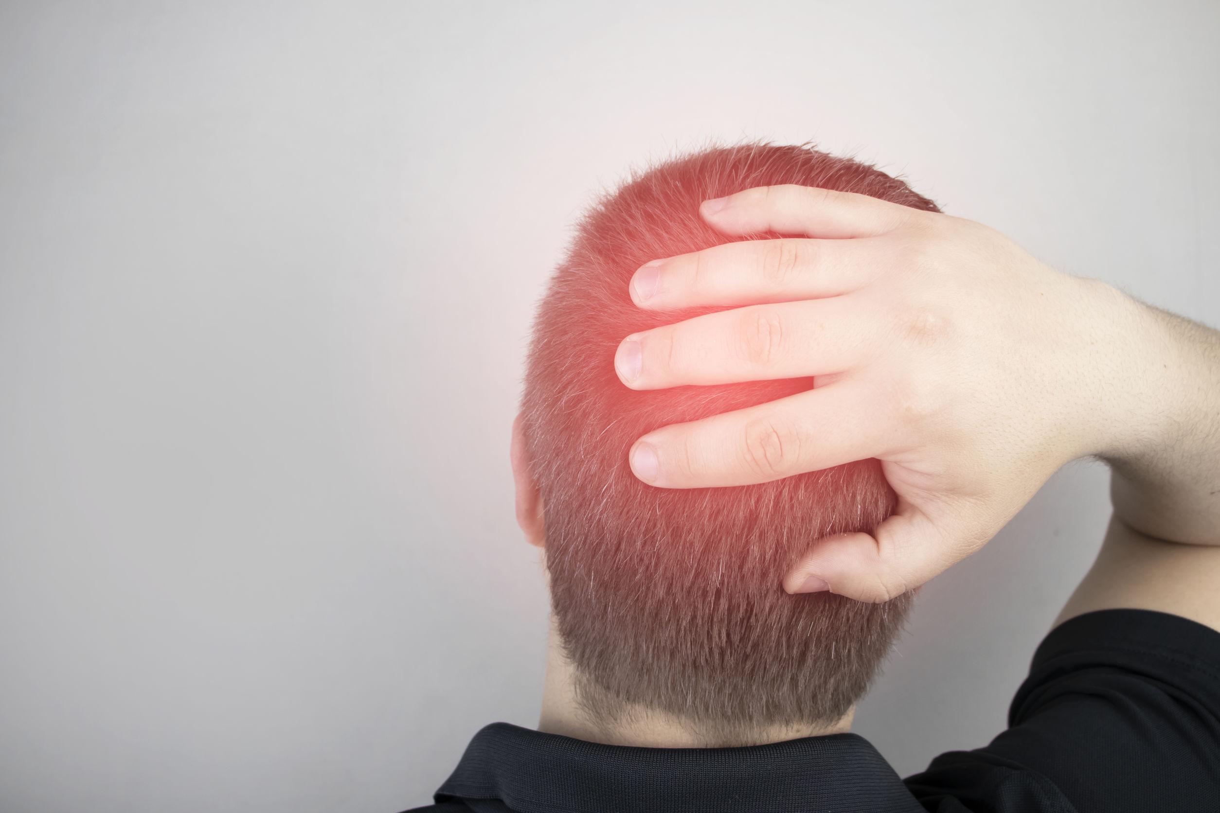 כאבי ראש אחוריים (אוקסיפיטליים) – טיפול עם דיקור סיני מרידיאני
